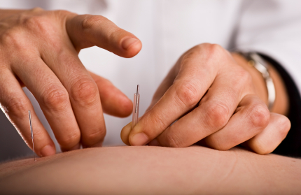 Pins & Needles: Acupuncture in Addiction Recovery.